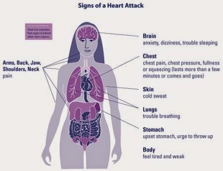 Ergonomics today female heart attack symptoms female heart attack symptoms ccuart Choice Image