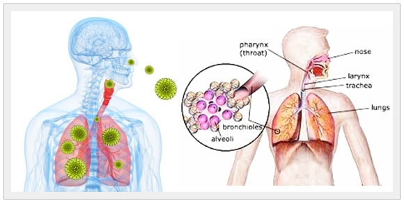 Pengobatan Herbal Pneumonitis Hipersensitivitas