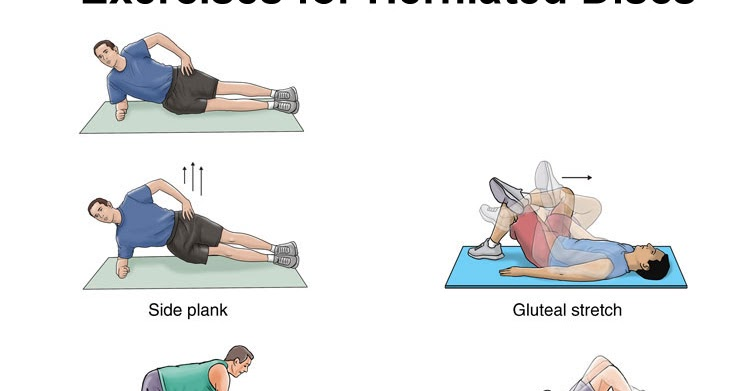 disc herniation exercises - photo #15