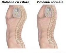 Cauzele, simptomele si tratamentul cifozei