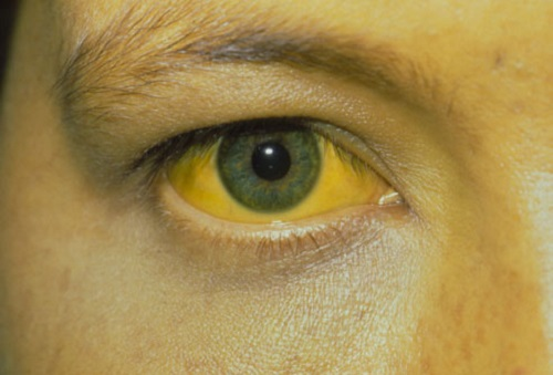 dấu hiệu viêm gan B