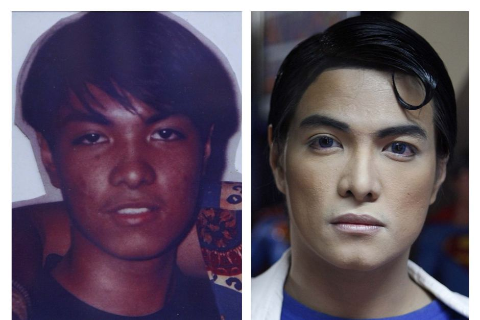 Superman plastic surgery gone wrong, Phillippino Superman Fan