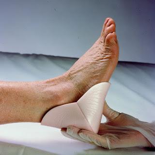 ALLEVYN HEEL ESP TALONES tratamiento de úlceras por presión en el talón, codos o áreas anatómicas similares.