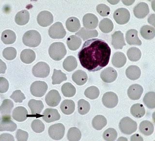 Hình ảnh anaplasma ký sinh trong tế bào máu bò