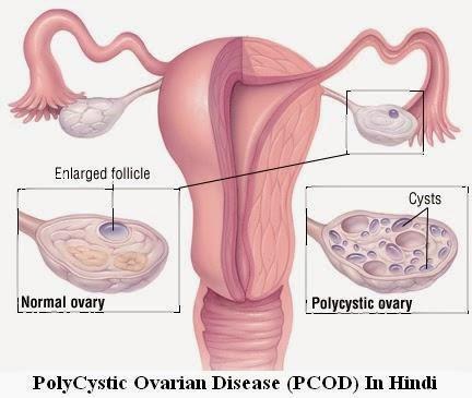 PolyCystic-Ovarian-Disease-(PCOD)-In-Hindi