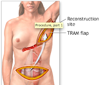 Best Reconstructive Plastic Surgery India Kolkata: Breast Reconstruction Free Flaps by Dr Srinjoy Saha