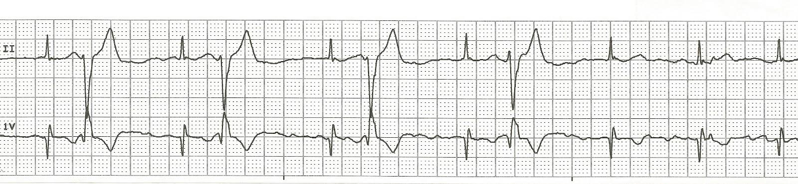 Ventricular Bigeminy Rhythm Ekg Rhythm Strips 81 Bigeminy
