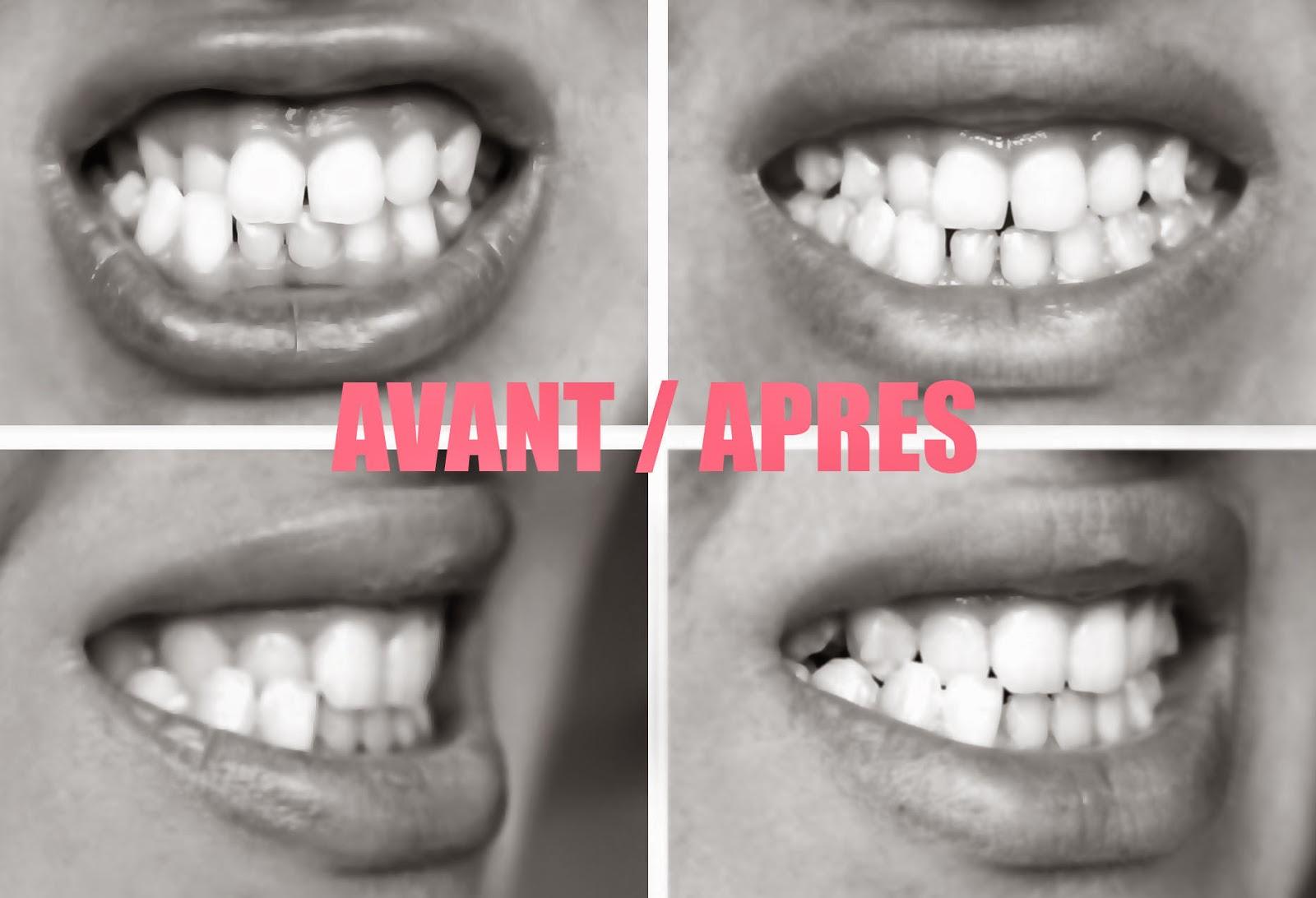 Photos AVANT/APRES à 6 mois de traitement Invisalign.