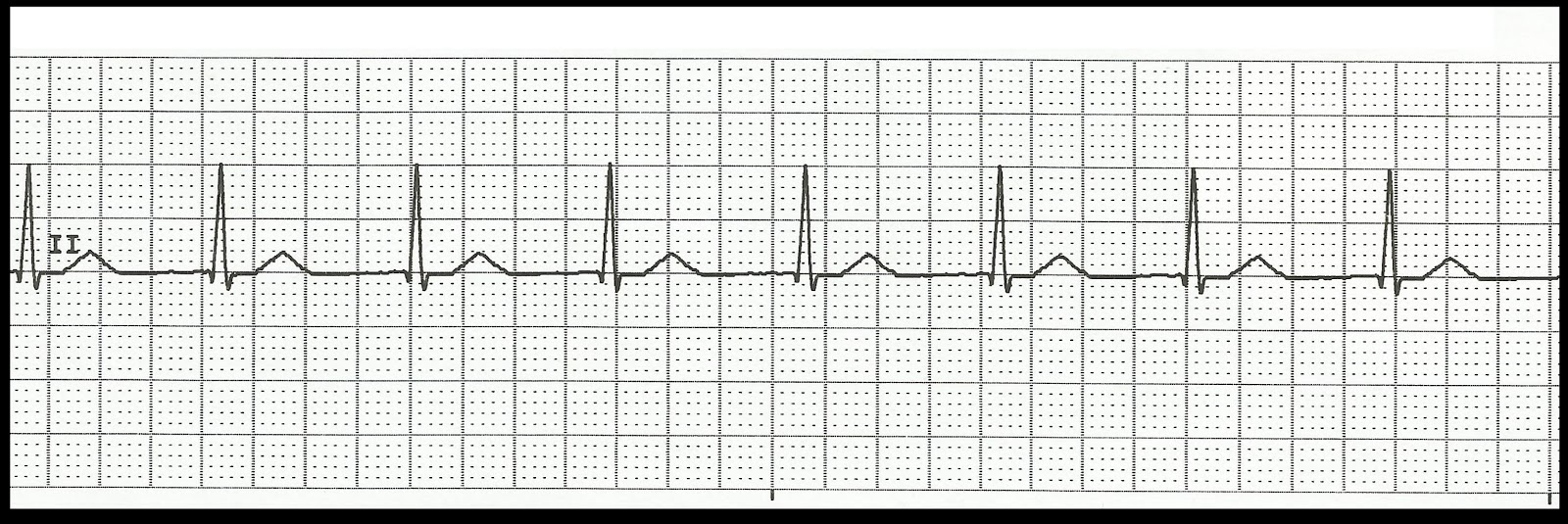 Accelerated junctional rhythm jpgAccelerated Junctional Rhythm