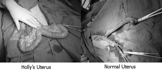 Pyometra Dog Surgery Cost Uk