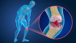 Como fazer a prevenção da Osteoporose