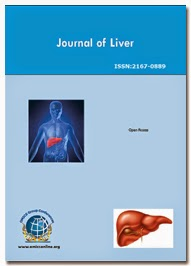 <b>Journal of Liver</b>