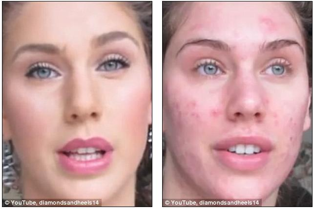 Acne Before And After Makeup Pictures to Pin on Pinterest - PinsDaddy