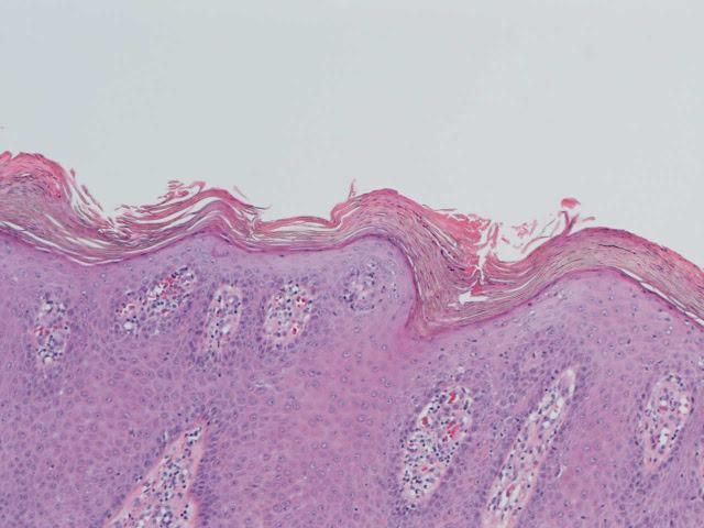 http://4.bp.blogspot.com/-RWBw_dlMpco/UNc7x99vbbI/AAAAAAAAABQ/B3UI9NKtLFI/s1600/que+es+la+psoriasis.jpg