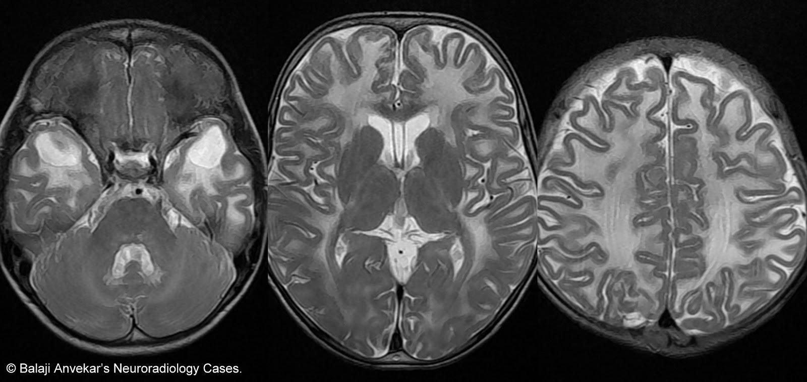 Neuroradiology cases van der knaap leukoencephalopathy mri