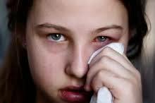 cara mengobati sakit mata