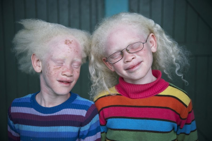Albino+Twins+-+6+Images.+Personal+Projects.jpg