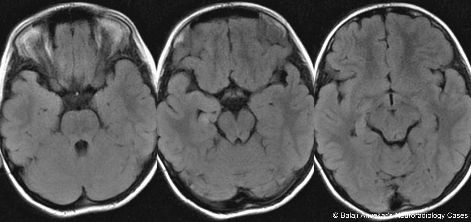 Dr Balaji Anvekars Neuroradiology Cases 011111 011211