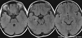 Dr Balaji Anvekar's Neuroradiology Cases: 01/11/11 - 01/12/11