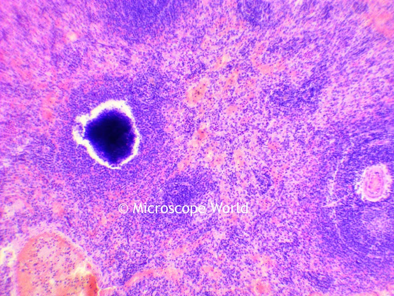 Spleen under the microscope at 100x magnification.