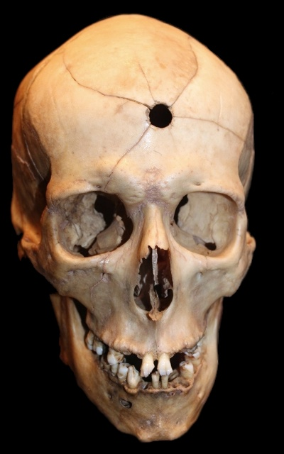 Smithsonian, skull with gunshot hole