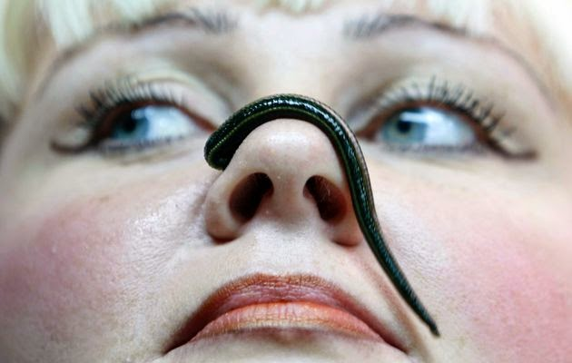 Woman Discovers Three-inch-long Leech living In Her Nose