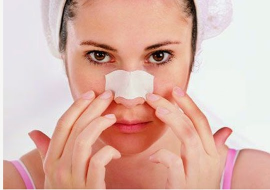 Tips Perawatan Wajah Berkomedo