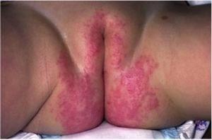 Os problemas de pele mais comuns na infância