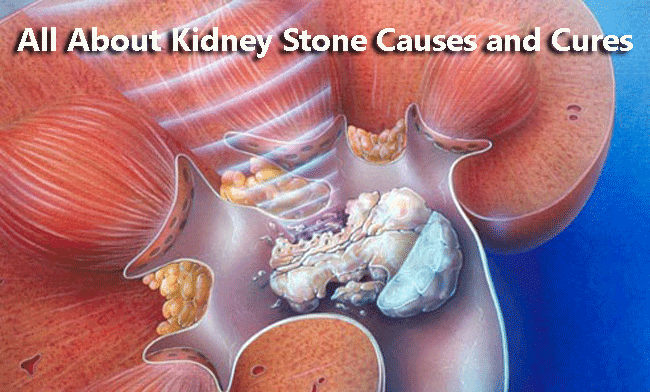 All About Kidney Stone Causes and Cures