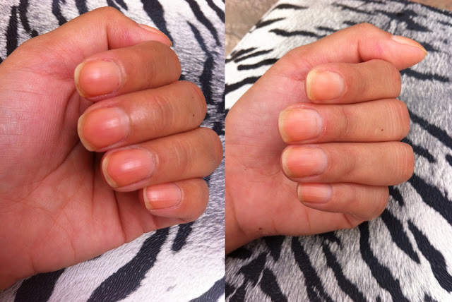 home remedies for yellow nails , home remedies for nails, home remedies for  discoloured nails, home remedies for long nails, home remedies for to get rid of yellow nails, home remedies to get rid of yellow nails, home remedies to get healthy nails, home remedies to get rid of discoloured nails, home remedies to get red of spoiled nails, home remedies to get white bails, home remedies for white nails, home remedies to whiten nails, home remedies to treat yellow nails, home remedies to treat spoiled nails, he remedies to treat discoloured nails, home remedies to tread spoiled nails, home remedies to treat damaged nails, home remedies to treat yellow and spoilt nails, home remedies to get healthy nails, home remedies for nails spoiled by nailpaint, home remedies to treat nails spoiled by nailpaint, home remedies to treat nails damaged by nailpaint, home remedies for nails damaged by regular nailpaint, home remedies for nails discoloured by regular use of nailpaint, does regular use of nailpaint damage nails, does regular use of nailpaint makes nails yellow, does nail paint makes nails yellow, does applying nail paint regularly spoils nails, is applying nail paint regularly bad for nails, is applying nail paint wrong, how to take care of nails, how to maintain nails, how to get healthy nails, how to maintain nails healthy, how to take care of spoiled nails, how to take care of unhealthy nails, how to take care of yellow nails, how to take care of infected nails, how to maintain healthy nails, how to maintain nails, how to maintain strong nails, how to prevent nails from becoming yellow, how to prevent nails from spoiling, how to prevent nails from getting yellow, how to prevent nails from becoming yellow because of nail paint, how to get white nails, how to get healthy nails, how to get clean nails, how to clean nails, how to clean yellow nails, how to clean yellowness on nails, how to get strong nails, how to get rid of yellow nails , how to get rid of brittle nails, 