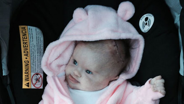 Florida baby gets second chance at life after doctors remove tumor