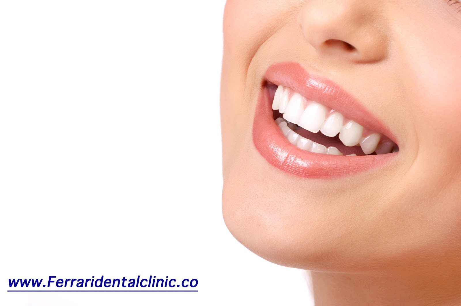 Are Teeth Laser Whitening Bleaching In Beirut Lebanon