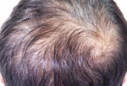 نقص فيتامين د وتساقط الشعر
