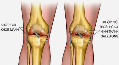 Thuốc trị bệnh thái hóa xương khớp từ USA hiệu quả rõ rệt