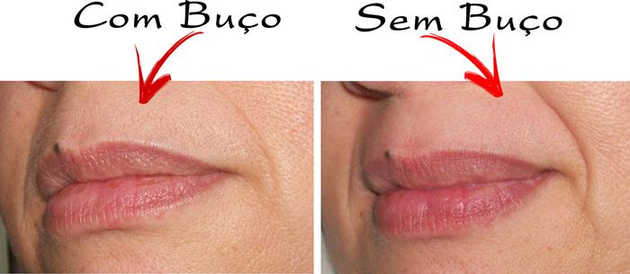 Antes e depois da depilação para buço
