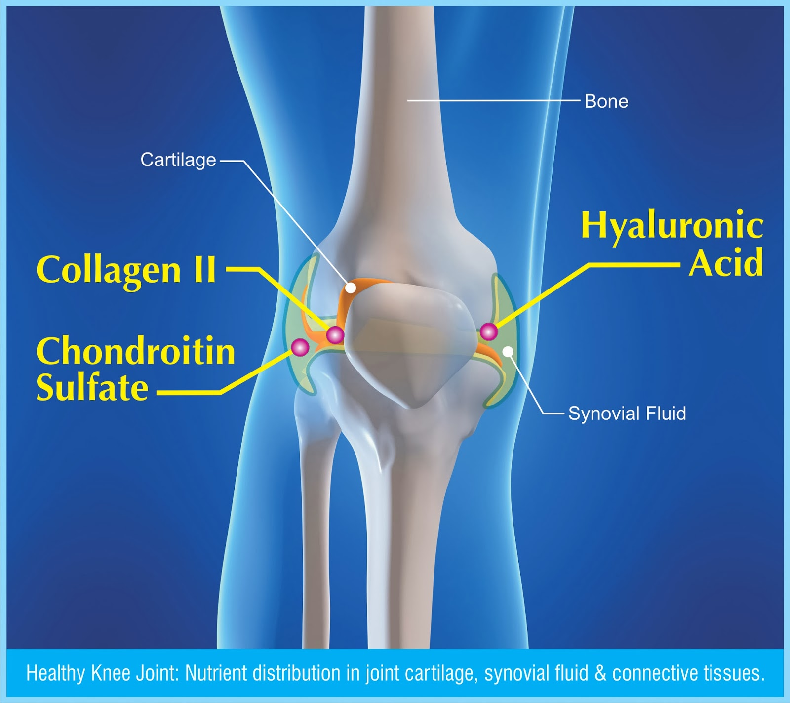 an analysis of osteoarthritis and its treatment with glucosamine sulfate Effect of glucosamine and chondroitin sulfate in symptomatic knee osteoarthritis: a systematic review and meta-analysis of randomized placebo-controlled trials.