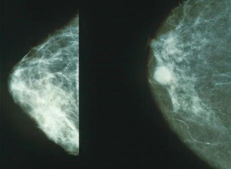 Obat Kanker Payudara Ampuh