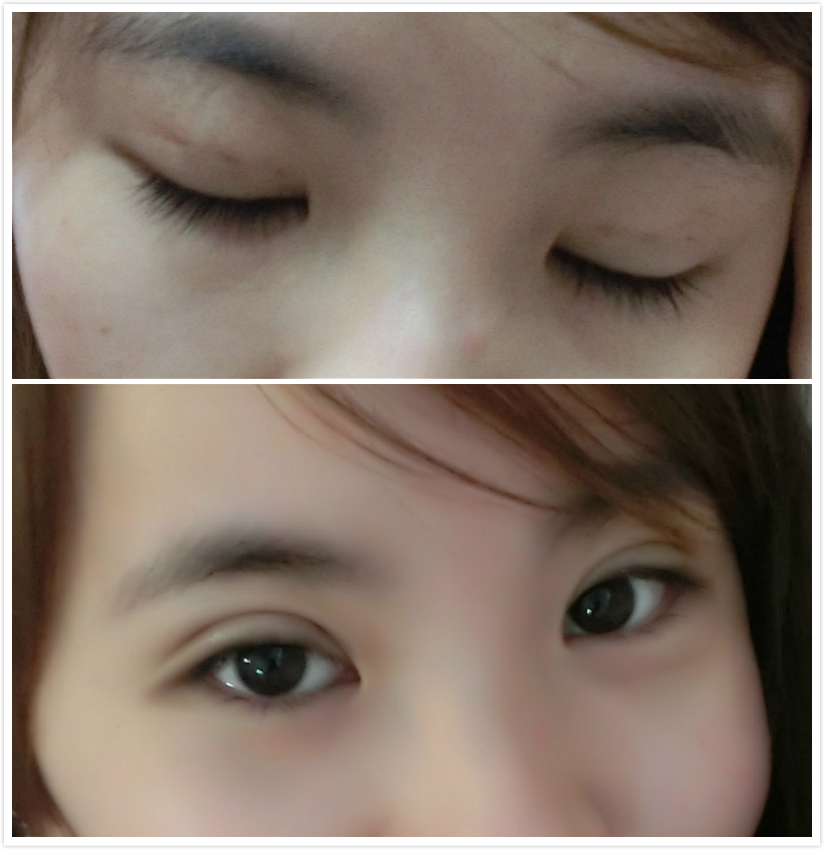 right eye swelling