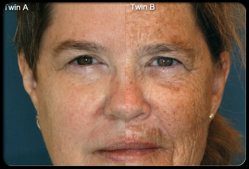 Age spots are blotches of darker skin color that are common on the