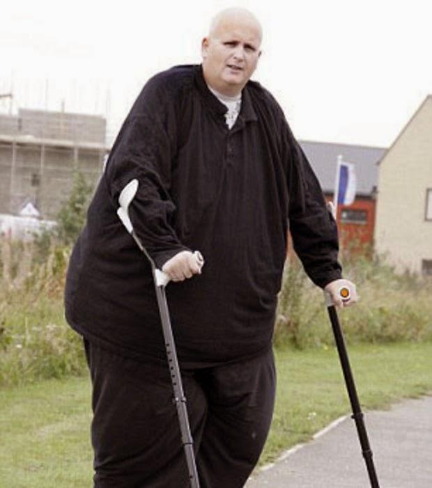 L 39 homme le plus gros du monde a perdu pr s de 300 kilos blogs rigolo - L homme le plus beau au monde ...