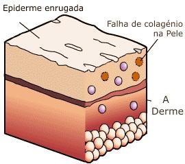 Fasceitis Necrotizante