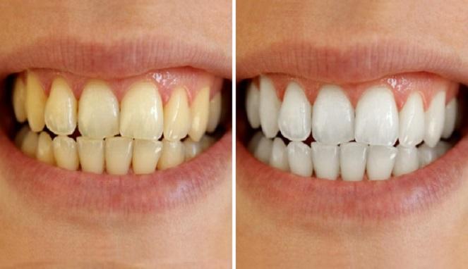 Cara Ampuh Dan Mudah Memutihkan Gigi Anda Redaksi7