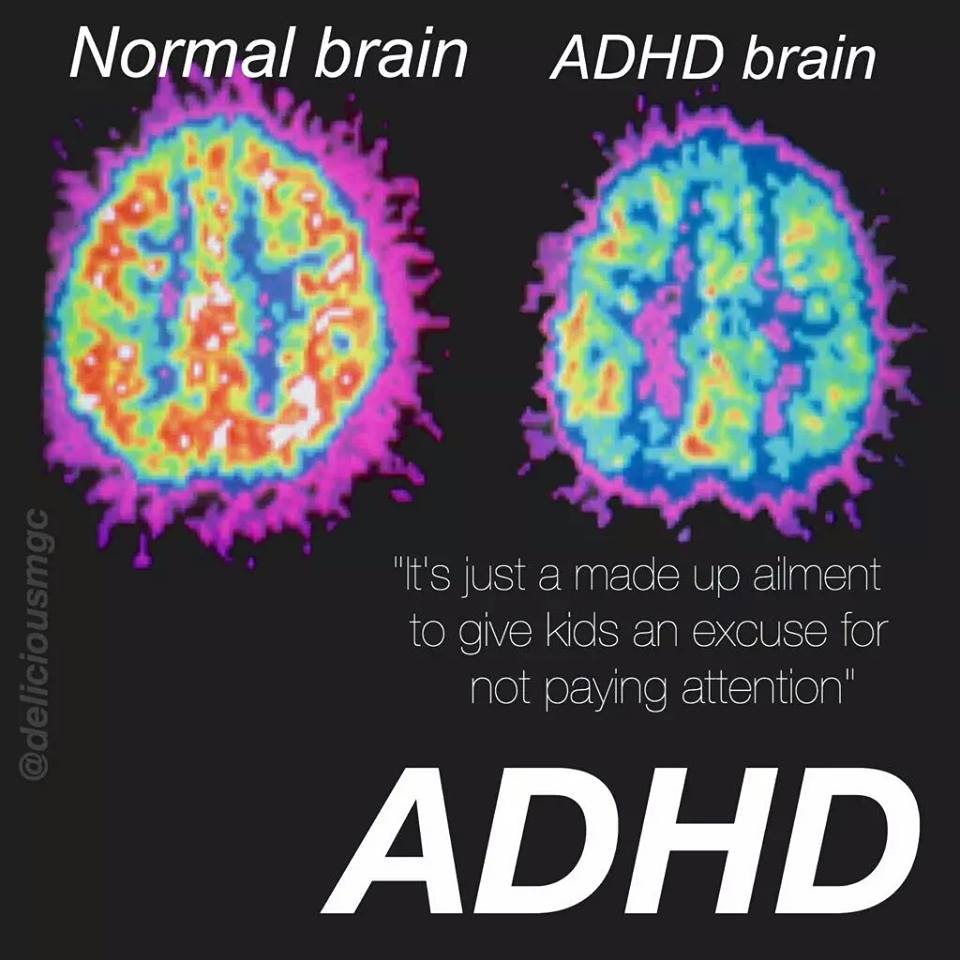a description of attention deficit disorder as a problem that affects on 5 to 10 of all children Attention-deficit/hyperactivity disorder  attention deficit disorder attention deficit disorder (add) is a problem that affects 5% to 10% of all children.