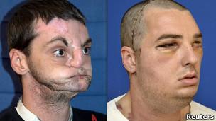 El trasplante de cara más completo jamás realizado