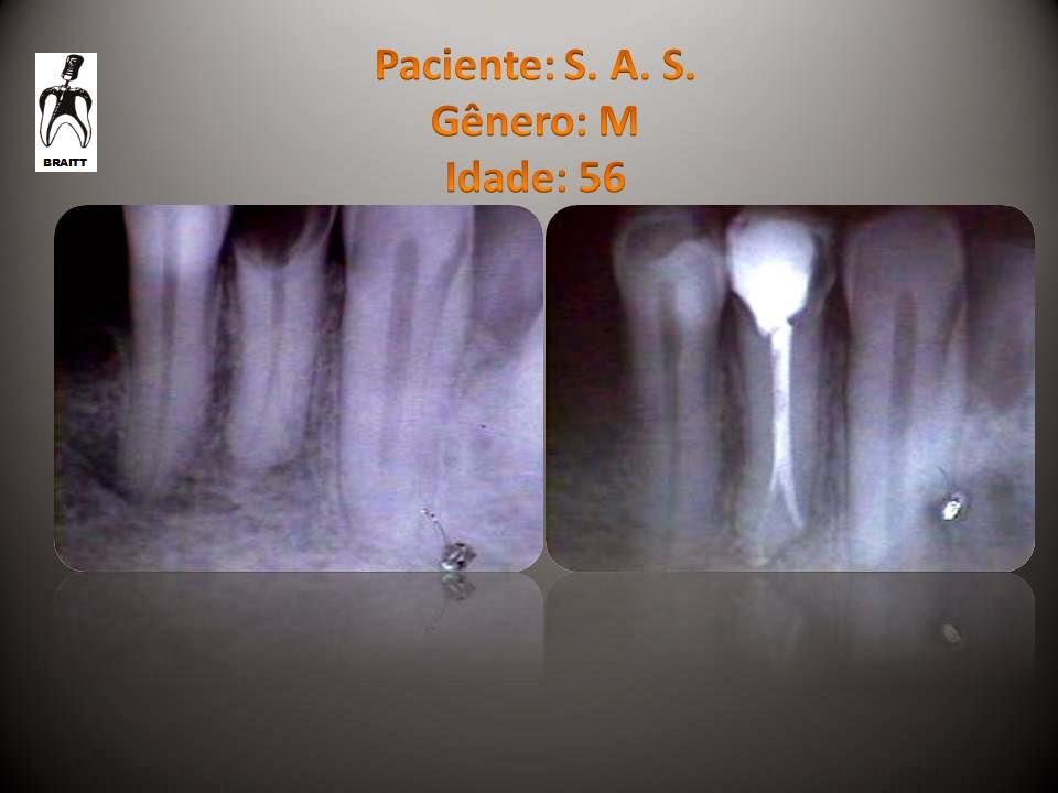 Endodontia Dr. Henrique Braitt: Tratamento endodôntico de um ...