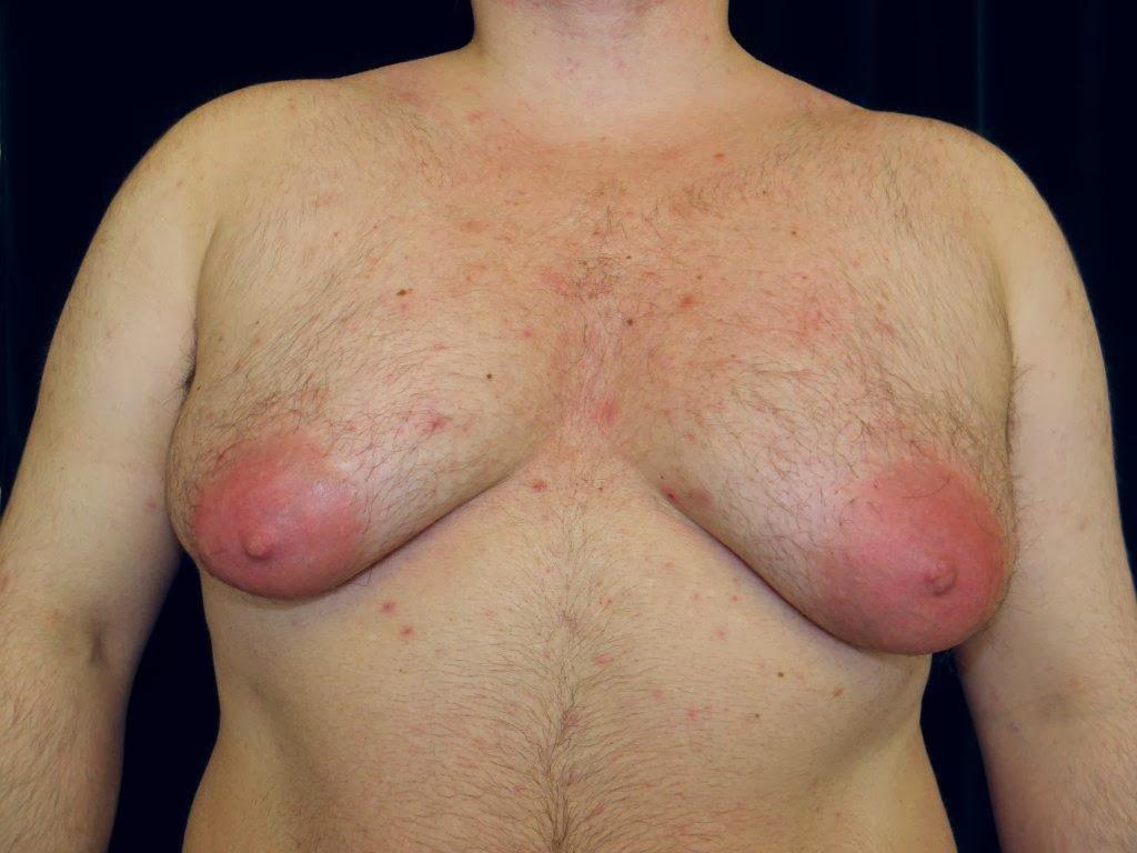 gynecomastia surgery-sacramento, california