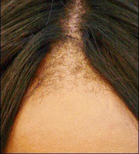 Black Hair Loss Specialist Nj