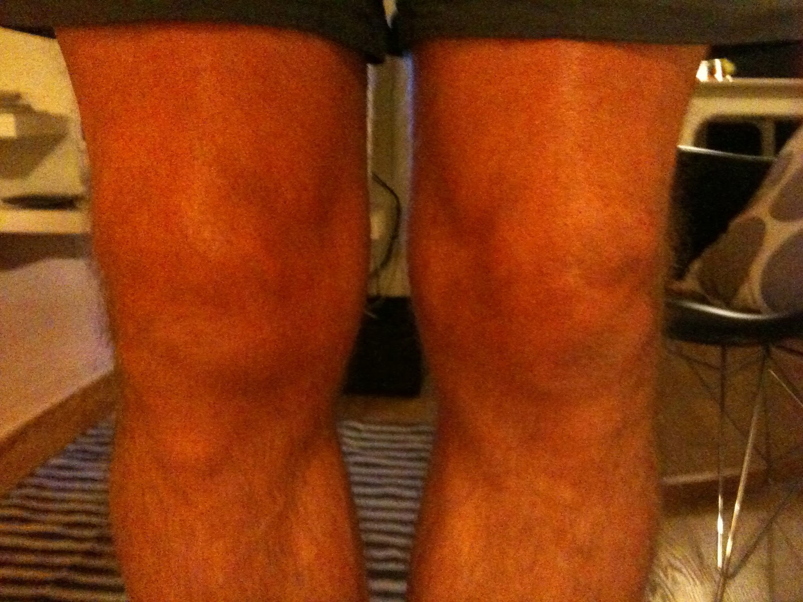 hævet knæ med væske