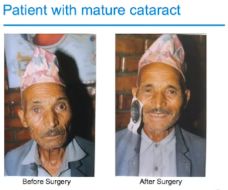 Cataract patient medicine mondiale intraocular lens technology
