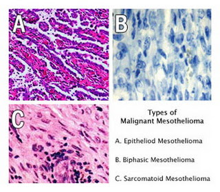 Mesothelioma Cancer Types